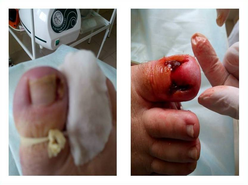 Как я вылечил ногтевой грибок часть 2